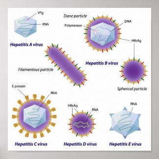 Poster de la comparación de los virus de hepatitis