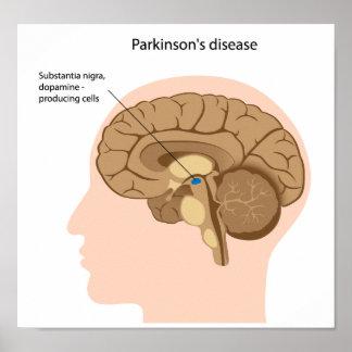 Poster de la enfermedad de Parkinson