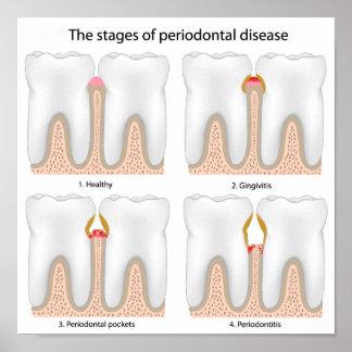 Poster de la enfermedad periodontal del diente