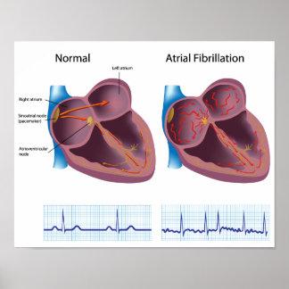 Poster de la fibrilación atrial de la enfermedad c