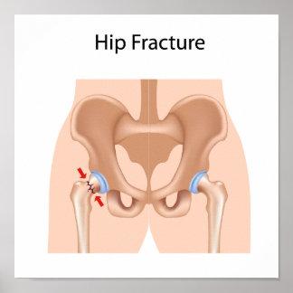 Poster de la fractura de hueso de la cadera