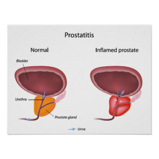 Poster de la inflamación de la próstata de la pros