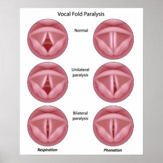 Poster de la parálisis del cordón vocal póster