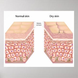 Poster de la piel seca