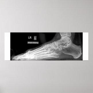 Poster de la radiografía del pie