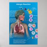 Poster de la reacción alérgica
