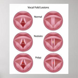Poster de las lesiones del cordón vocal