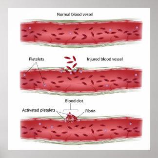 Poster de proceso de la coagulación de la sangre