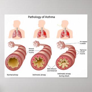 Poster del asma de la enfermedad pulmonar