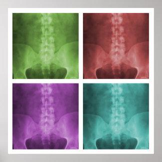 Poster del cuadrado del arte pop de la radiografía