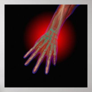 Poster del dolor de la mano