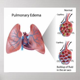 Poster del edema pulmonar