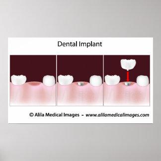 Poster del procedimiento del implante dental