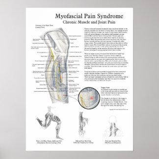 Poster del síndrome del dolor de Myofascial
