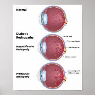 Poster diabético de la retinopatía de la enfermeda