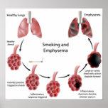 Poster el fumar y del enfisema