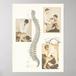 Poster espinal del ajuste de la quiropráctica