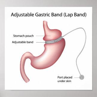Poster gástrico de la cirugía de la pérdida de pes póster