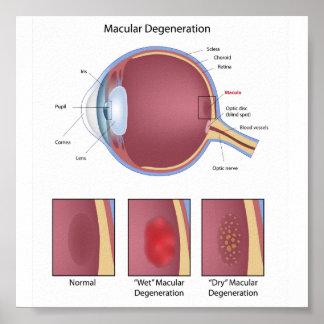 Poster macular de la degeneración del ojo