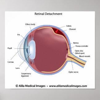 Poster retiniano de la separación del ojo