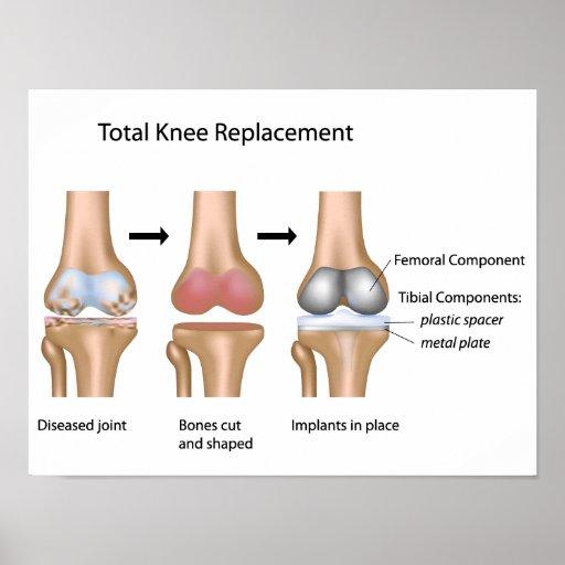 Poster total de la cirugía del reemplazo de la rod