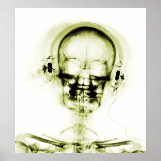 POSTER- X-RAY MUSIC SKELETON WHITE YELLOW POSTER
