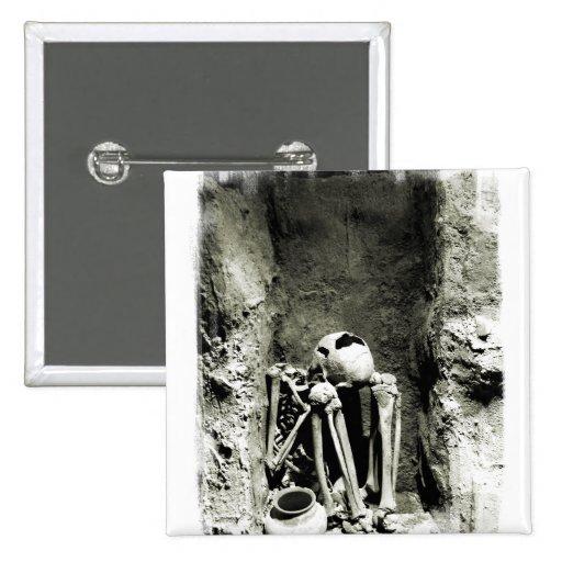 Pre-Columbian Gravesite Skeleton Button