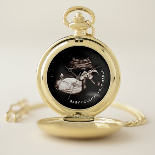 Pregnancy Baby Sonogram Ultrasound Photo Grandpa Pocket Watch