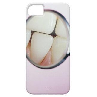 Primer de los dientes reflejados en espejo dental iPhone 5 carcasa