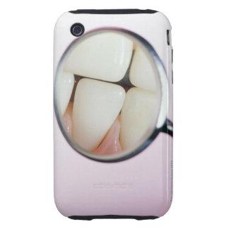 Primer de los dientes reflejados en espejo dental tough iPhone 3 carcasa