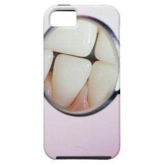 Primer de los dientes reflejados en espejo dental iPhone 5 Case-Mate protector