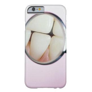 Primer de los dientes reflejados en espejo dental