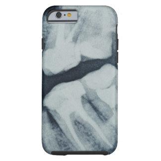 Primer de una radiografía dental funda de iPhone 6 tough