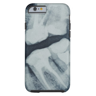 Primer de una radiografía dental funda resistente iPhone 6