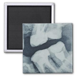 Primer de una radiografía dental imán cuadrado