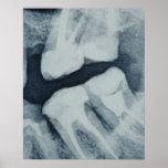 Primer de una radiografía dental impresiones