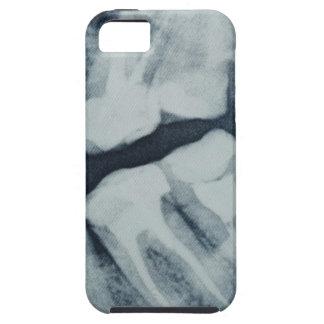 Primer de una radiografía dental iPhone 5 fundas