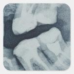 Primer de una radiografía dental calcomania cuadradas personalizadas