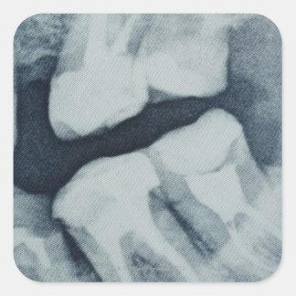Primer de una radiografía dental pegatina cuadrada