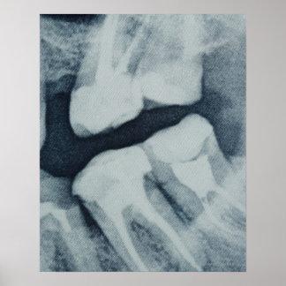 Primer de una radiografía dental póster