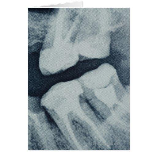 Primer de una radiografía dental tarjeta de felicitación