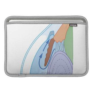 Procedimiento 2 de Trabeculectomy Funda Macbook Air