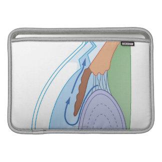 Procedimiento de Trabeculectomy Funda MacBook