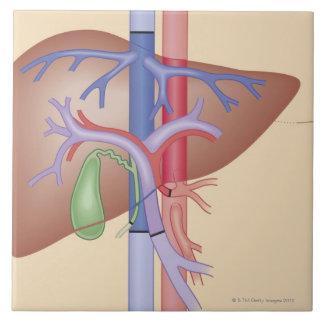 Procedimiento del trasplante del hígado azulejo cuadrado grande