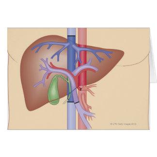 Procedimiento del trasplante del hígado tarjeta de felicitación
