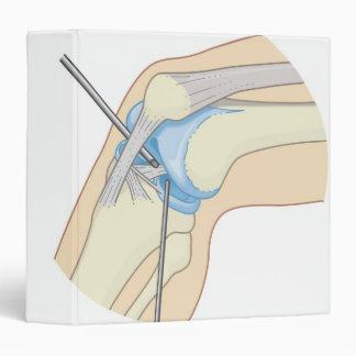 Procedimiento rígido de la endoscopia