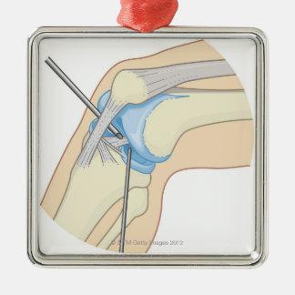 Procedimiento rígido de la endoscopia ornamentos de navidad