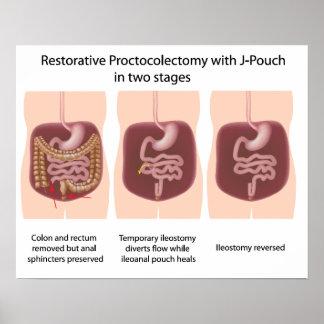 Proctocolectomy restaurativo con las etapas de la  impresiones