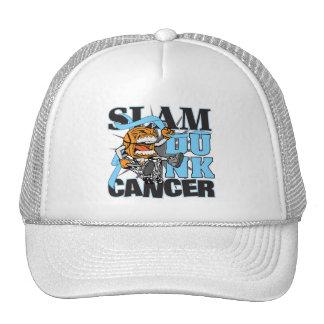 Prostate Cancer - Slam Dunk Cancer Trucker Hat