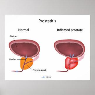Prostatitis prostate inflammation Poster